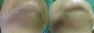 Laser Hair Removal Atlanta