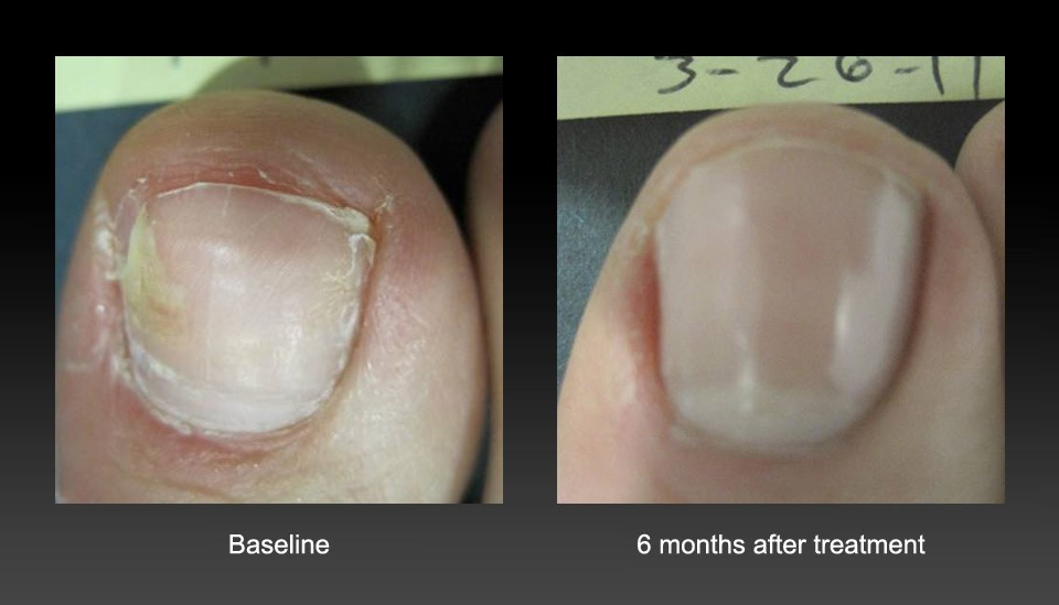 Laser Nail Fungus Removal - Laser Medspa Treatments, Atlanta