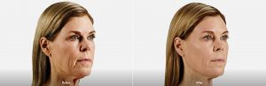 Voluma Facial Filler Before and After